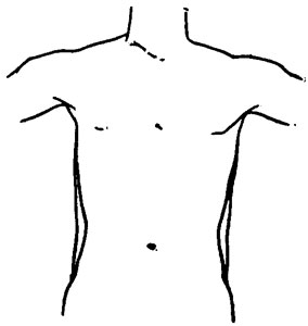 Diagram Book Prize besides The Best Ab Exercises To Get Six Pack Abs together with Dwayne The Rock Johnson Undergoes Hernia Surgery likewise Intercostal nerves further Barretts Oesophagus Leaflet. on upper abdomen diagram
